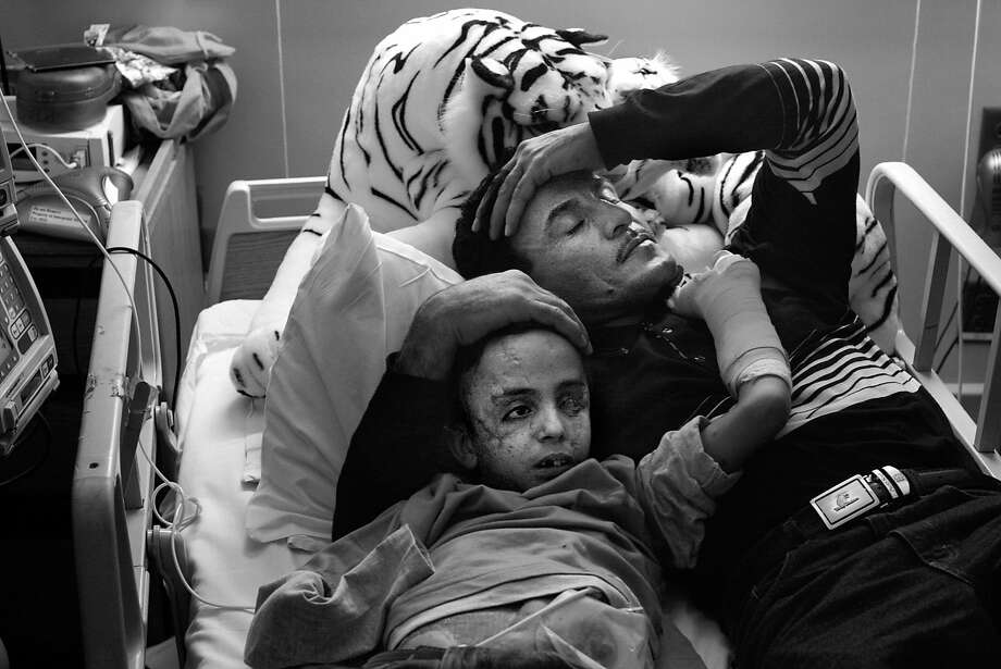 Raheem would comfort Saleh in his hospital bed until he fell asleep. Raheem lost his oldest son, Dia, in the explosion that maimed Saleh and did not have the heart to tell Saleh his older brother had died. Photo: Deanne Fitzmaurice, The Chronicle