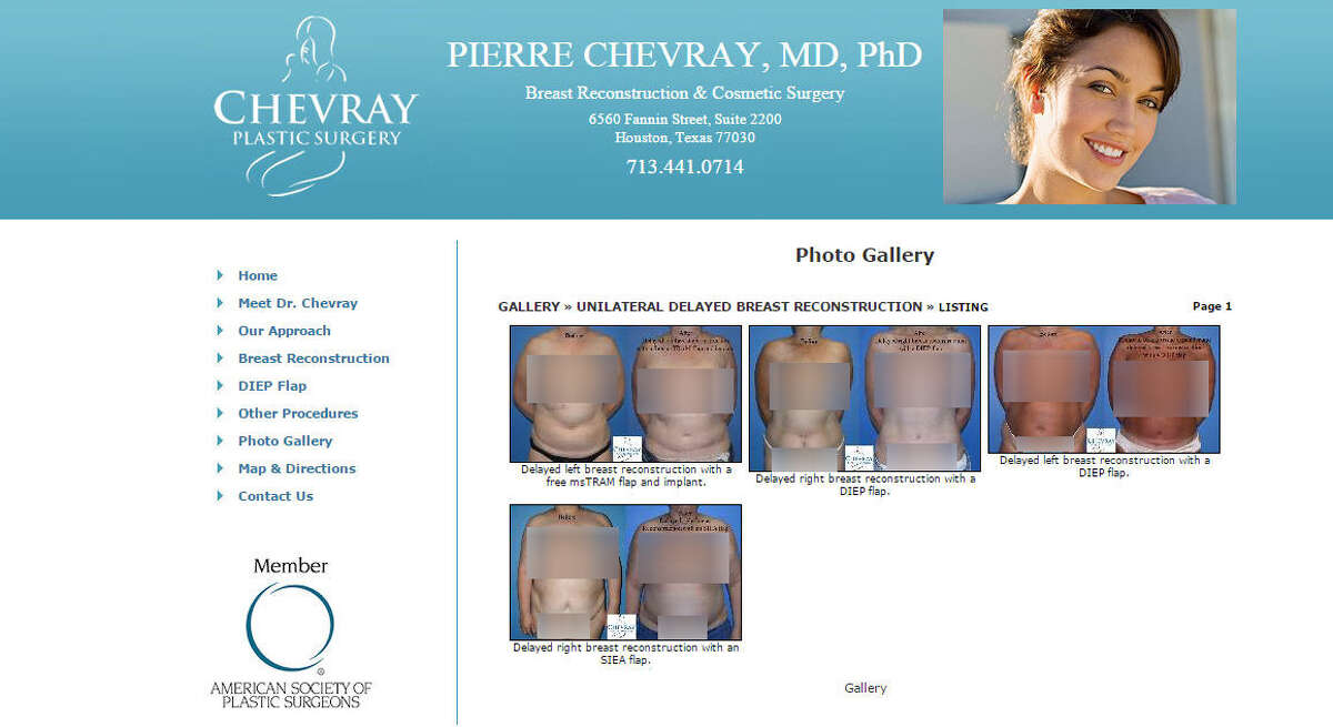 A Virginia woman is suing Houston plastic surgeon Dr. Pierre Chevray after her 12-year-old son allegedly found topless before-and-after photos of her breast surgery like the ones above (edited by Chronicle).