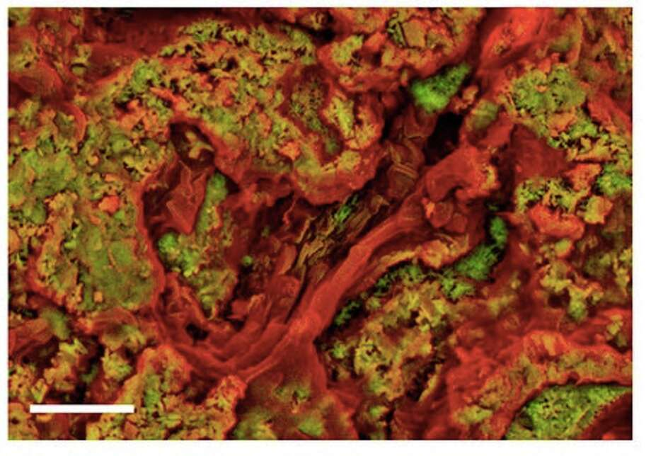 "This and the following three slides were published under the heading ""Density-dependent colour scanning electron micrographs of samples of NHMUK R12562, an ungual claw of an indeterminate theropod dinosaur, and NHMUK R4493, ribs from an indeterminate dinosaur."" This is figure  (a) Amorphous carbon-rich material (red) surrounded by dense material (green). Scale bar, 5 μm. Photo: Sergio Bertazzo et al. in NATURE COMMUNICATIONS"