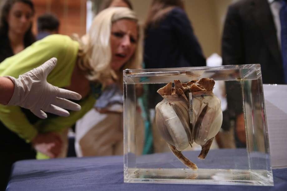 The first artificial heart successfully transplanted into a human being has gone on display at the Smithsonian Institution in Washington, DC, June 19, 2015.(Getty Images)