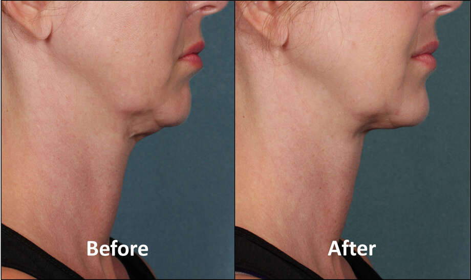 Kybella (deoxycholic acid) is used to remove fat from double chins and necks. Photo: Courtesy Photo / ONLINE_YES