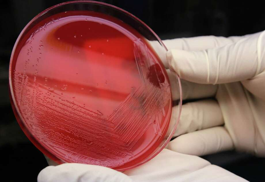 An agar plate with listeria cultures ready for testing in the Medical Microbiology lab at the Houston Health and Human Services Department on Thursday, June 18, 2015, in Houston. ( Mayra Beltran / Houston Chronicle ) Photo: Mayra Beltran, Staff / Houston Chronicle / © 2015 Houston Chronicle