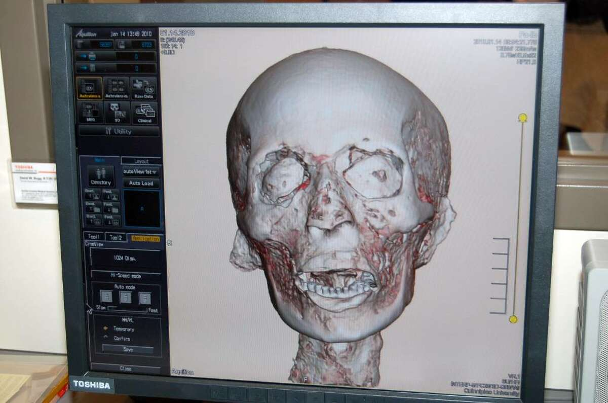 Pa-Ib (pronounced paw eeeb), the mummy from the Barnum Museum, in Bridgeport, was X-rayed using a Toshiba 64-slice scanner on January 14 at Quinnipiac University's North Haven campus.