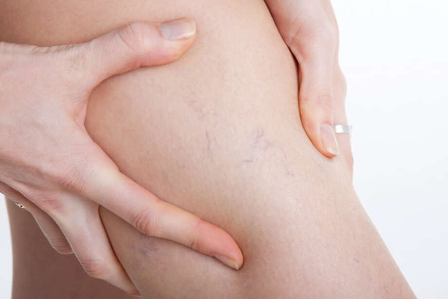 Hamilton Vein offers free consultations for those with vein disease. / (c) HAseyin Tuncer