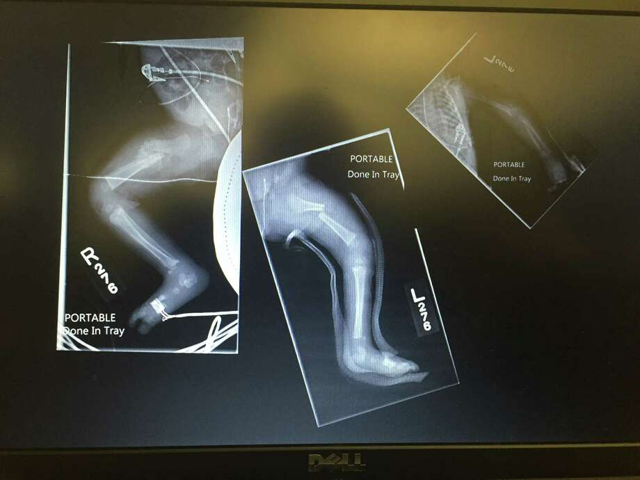 X-ray of Faith Mason's fractured legs as seen from a computer screen shown Wednesday during the trial of Christine Johnson, Faith's mother who is accused of injuring her newborn.