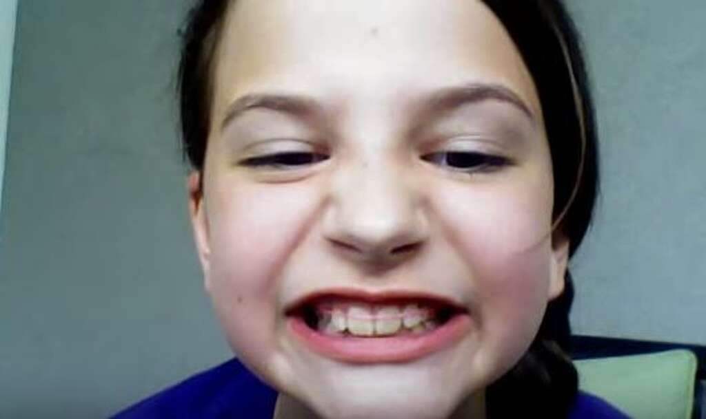 Diy braces can lead to tooth loss gum disease san antonio express a video published june 2 2014 by lakota brown is one of various youtube solutioingenieria Images