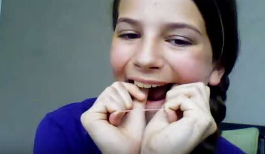 A video published June 2, 2014, by lakota brown is one of various YouTube videos showing how to make do-it-yourself braces with rubber bands. The American Association of Orthodontists warns that the practice is dangerous. Photo: Christian, Carol, Via YouTube