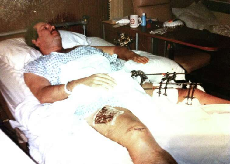 Don Piper in the hospital after his accident in 1989.: www.mysanantonio.com/news/slideshow/90-Minutes-In-Heaven-116969.php