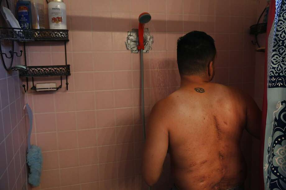Guillermo Lopez shows deep scars from his yearlong struggle with valley fever  as he takes a shower with a temporary, battery-powered shower head that pumps water from the bathtub. Photo: Leah Millis, The Chronicle
