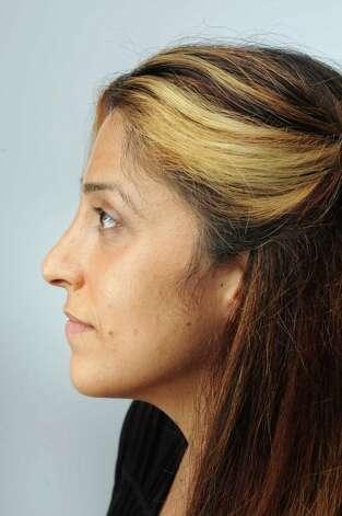 Joanne Rizk, of Troy, natural side. (Cindy Schultz / Times Union) Photo: Cindy Schultz / 10032842A