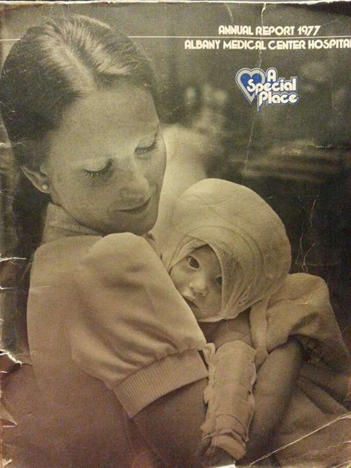 As a baby in 1977, Amanda Scarpinati was treated for burns at Albany Medical Center Hospital in Albany, N.Y. She shared images on Facebook to try to discover the nurse's identity. (Amanda Scarpinati photo via Facebook) ORG XMIT: V_FRNMdKp5gYLTyFsZJH