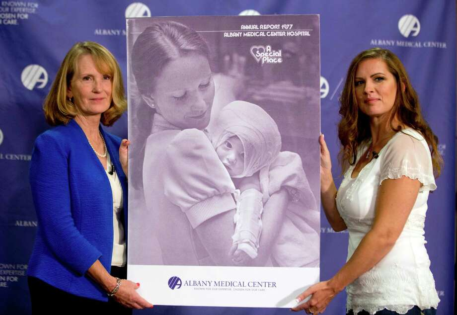 Nurse Susan Berger, left, and Amanda Scarpinati pose with a copy of a 1977 Albany Medical Center annual report during a news conference at Albany Medical Center, Tuesday, Sept. 29, 2015, in Albany, N.Y. Scarpinati, who suffered severe burns as an infant, is finally getting the chance to thank Berger who cared for her, thanks to a social media posting that revealed the identity of the nurse in 38-year-old photos. (AP Photo/Mike Groll) Photo: Mike Groll, STF / AP