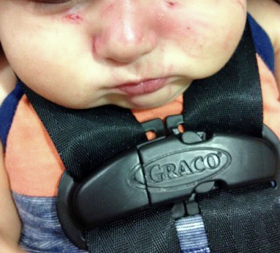 John and Jeanette Betancourt's four-month-old son was allegedly bitten 27 times by another child at an unlicensed daycare facility in San Antonio. Photo: Courtesy, John And Jeanette Betancourt