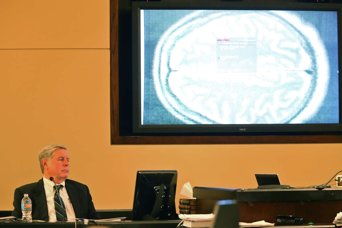 Defense witness, James Merikangas, a neurologist and psychiatrist, testifies in the capital murder trial of Mark Anthony Gonzalez in the Bexar County 175th District Court, Tuesday, Oct. 6, 2015. Gonzalez is accused of killing Bexar County Sheriff's Sgt. Kenneth Vann in May of 2011. The trial is in its third week.