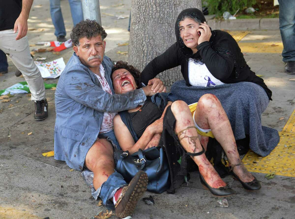 Wounded people wait for help at the site of an explosion in Ankara, Turkey, Saturday, Oct. 10, 2015. Two bomb explosions apparently targeting a peace rally in Turkey's capital Ankara on Saturday has killed over a dozen people, a news agency and witnesses said. The explosions occurred minutes apart near Ankara's train station as people gathered for the rally organized by the country's public sector workers' trade union. (AP Photo/Depo Photos) TURKEY OUT ORG XMIT: XLP113