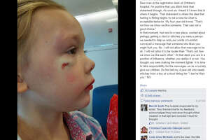 Mom blasts hospital worker over comment to bruised girl - Photo