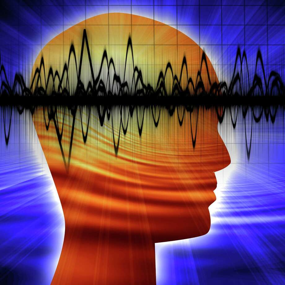 A new Yale-led shows that a person's brain activity appears to be as unique as his or her fingerprints. Photo: Contributed Photo / Argus - Fotolia