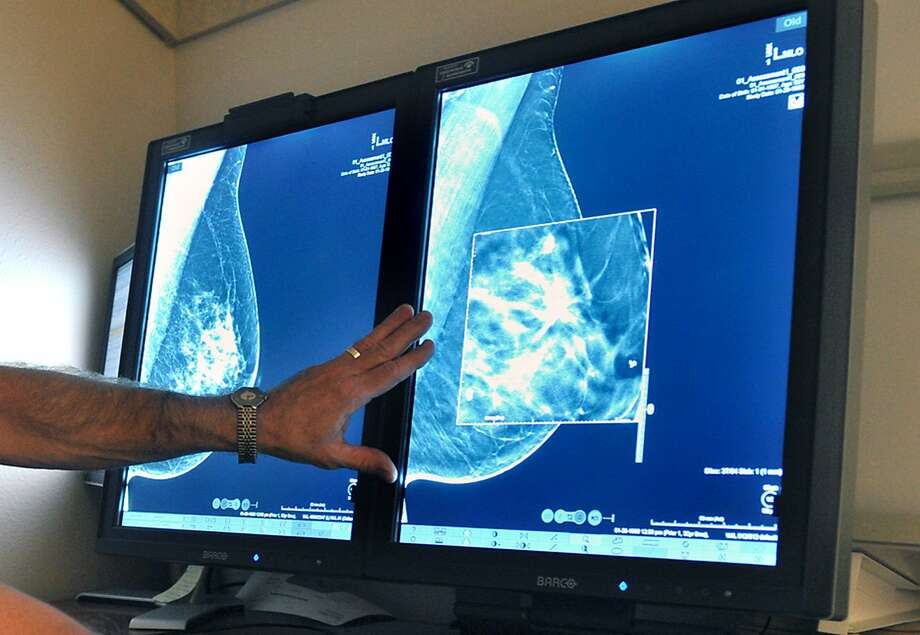 The U.S. Preventive Services Task Force's final  guidelines go against the long-held conventional viewpoint that women at  average risk of the cancer should start annual screenings at age 40. Photo: Torin Halsey, Associated Press