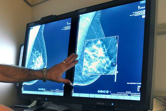In this Tuesday, July 31, 2012, file photo, a radiologist compares an image from earlier, 2-D technology mammogram to the new 3-D Digital Breast Tomosynthesis mammography in Wichita Falls, Texas. The technology can detect much smaller cancers earlier. In guidelines published Tuesday, Oct. 20, 2015, the American Cancer Society revised its advice on who should get mammograms and when, recommending annual screenings for women at age 45 instead of 40 and switching to every other year at age 55. The advice is for women at average risk for breast cancer. Doctors generally recommend more intensive screening for higher-risk women. (Torin Halsey/Times Record News via AP)
