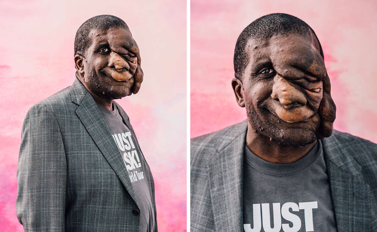 Reggie Bibbs lives with Neurofibromatosis, a genetic disorder that affects his nervous system. Why he's interested in Prop 1: Protection regardless of genetic information Bibbs tells wearehero.us: