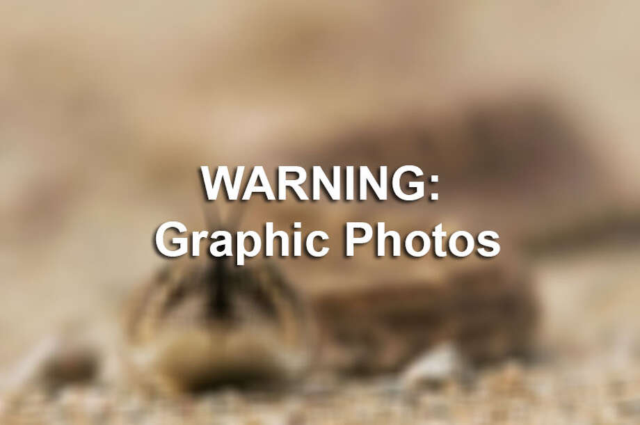 Texas country music star, Kevin Fowler, is taking to Facebook to warn against the feared enemy of rural area areas by posting photos of a gnarly rattlesnake bite. / 2006 Getty Images