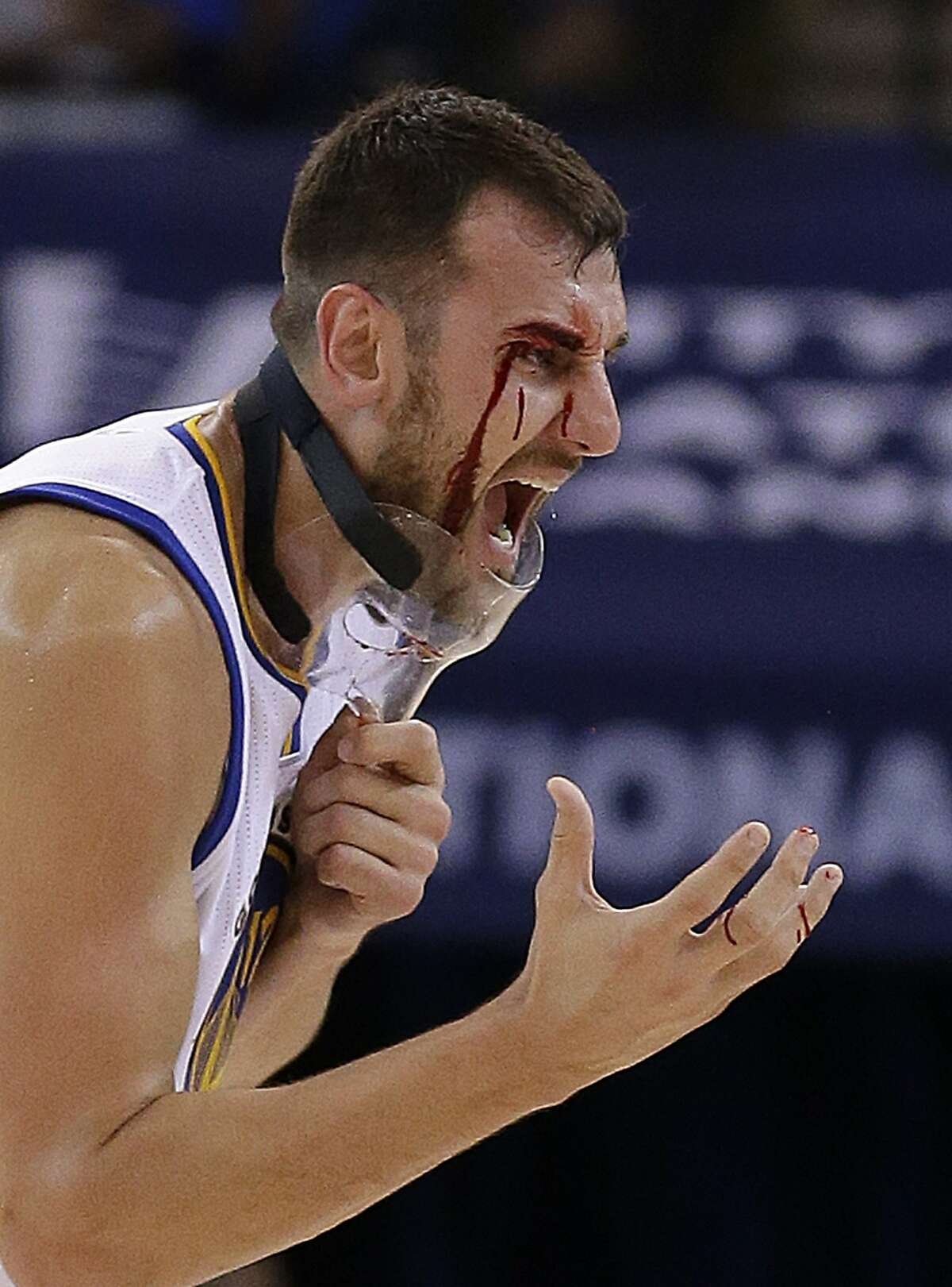 OCT. 27, 2015: WARRIORS 111, PELICANS 95 WARRIORS 1-0 Golden State Warriors' Andrew Bogut removes his protective mask after receiving a laceration near his eye during the second half of an NBA basketball game against the New Orleans Pelicans on Tuesday, Oct. 27, 2015, in Oakland, Calif. Bogut required stitches to close the wound. (AP Photo/Ben Margot)