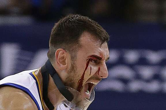 Golden State Warriors' Andrew Bogut removes his protective mask after receiving a laceration near his eye during the second half of an NBA basketball game against the New Orleans Pelicans on Tuesday, Oct. 27, 2015, in Oakland, Calif. Bogut required stitches to close the wound. (AP Photo/Ben Margot)