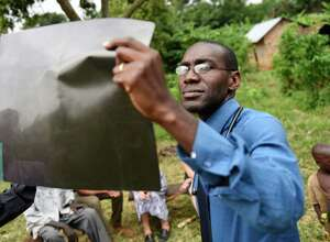 Dr. Robert Kalyesubula looks at an HIV positive patient's X-ray during an ACCESS Health Training Institute home visit in the rural town of Nakaseke, Uganda.