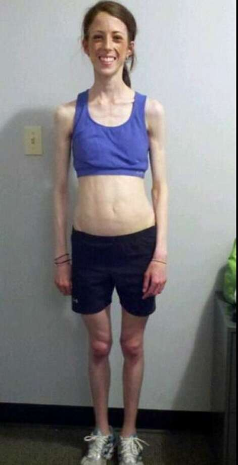 "Austin occupational therapist Lauryn Lax calls this her ""sick picture."" At age 23, in 2011, she weighed 79 pounds due to a years-long struggle with anorexia. Photo: Christian, Carol, Courtesy Of Lauryn Lax"