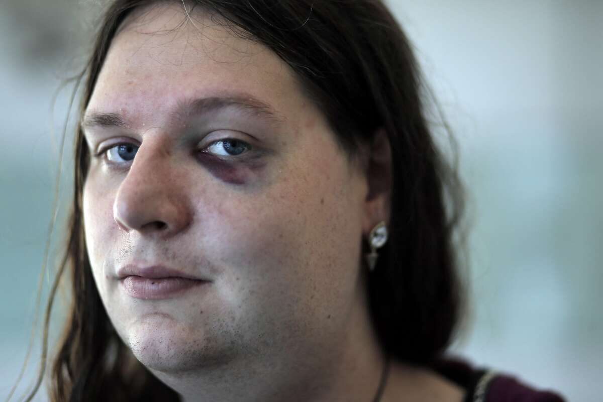 Samantha Hulsey, a transgender woman was attacked by what police are calling a hate crime in San Francisco, Calif., on Monday, November 16, 2015. Samantha emerged with a black eye, some upper body pain and swelling to her face and neck from the incident.