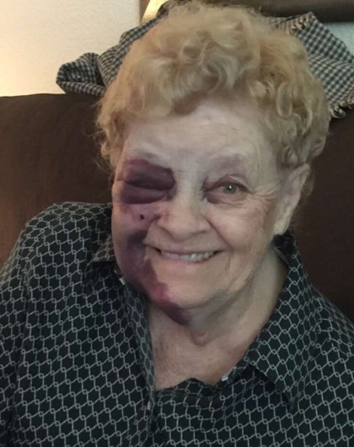 A Shoreline grandmother, pictured after she was robbed outside a Haggen grocery. Photo: Washingtons Most Wanted