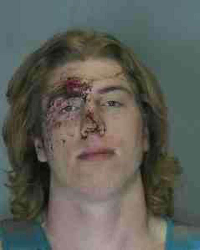 Broderick R. Shea, 20, was charged with inciting a riot after Union College's hockey victory April 12, 2014. (Schenectady police)
