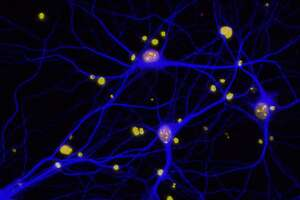 Gene mutation associated with cancer also linked to dementia - Photo