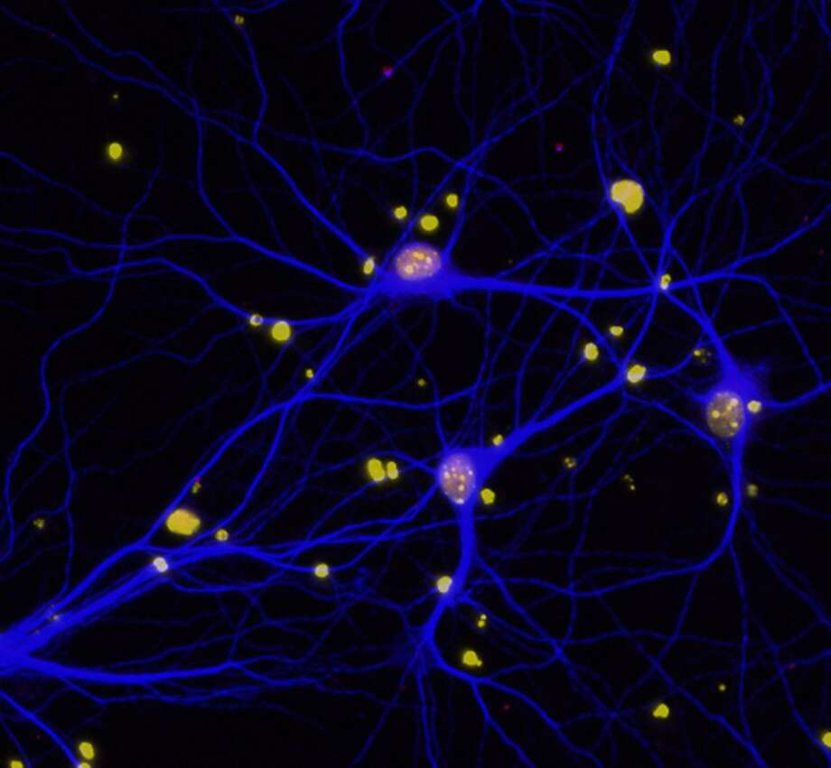 Scientists reduced levels of BRCA1 in mouse brains and in neurons in a dish to investigate the role of the protein in dementia. Photo: Contributed / Contributed / Connecticut Post