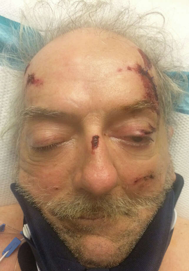 Memorial Hermann Texas Trauma Institute is seeking help in identifying this patient who was brought to the hospital after being hit by a vehicle in west Houston. Photo: Memorial Hermann Texas Trauma Institute