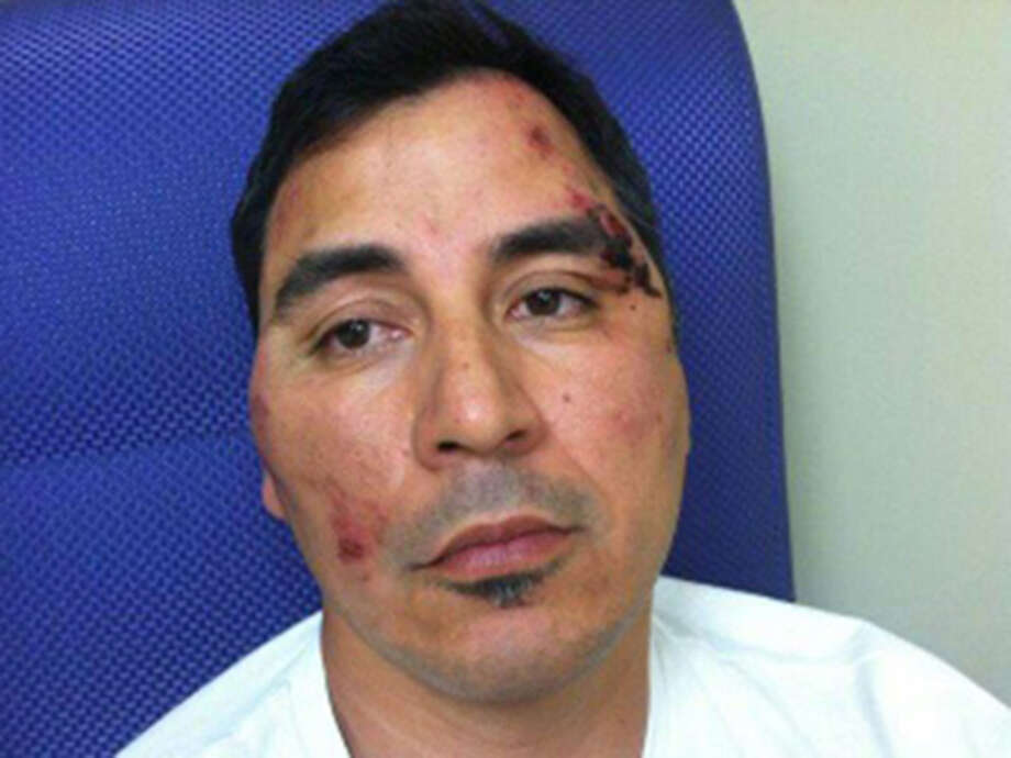 Roger Carlos is getting physical therapy in Houston for paralysis resulting from complications of surgery to relieve pain he suffered during the mistaken beating by San Antpnio Police Department officers. He is shown here after he was beaten. Photo: Courtesy
