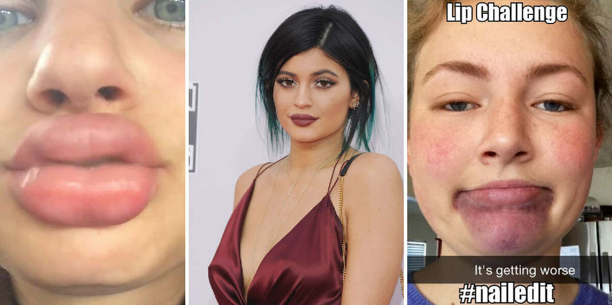 2. Kylie Jenner Challenge (a.k.a. DIY lip plumping).Girls place their lips into a shot glass and suck all the air out of the glass. This creates friction that puffs up the lips. Can you die from it?No, but the suction can cause the glass to shatter, cutting lips and cheeks and in some cases making stitches necessary. Even if the glass doesn't break, painful swelling and bruising can occur. Repeated attempts can result in permanent deformity. Fake or real? This is appears to be a real thing.