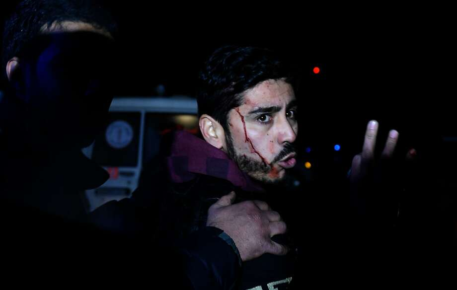 An Afghan man with blood on his face reacts after a suicide car bomb attack which targeted a compound for foreign contractors, in Kabul, on January 4, 2016. 
