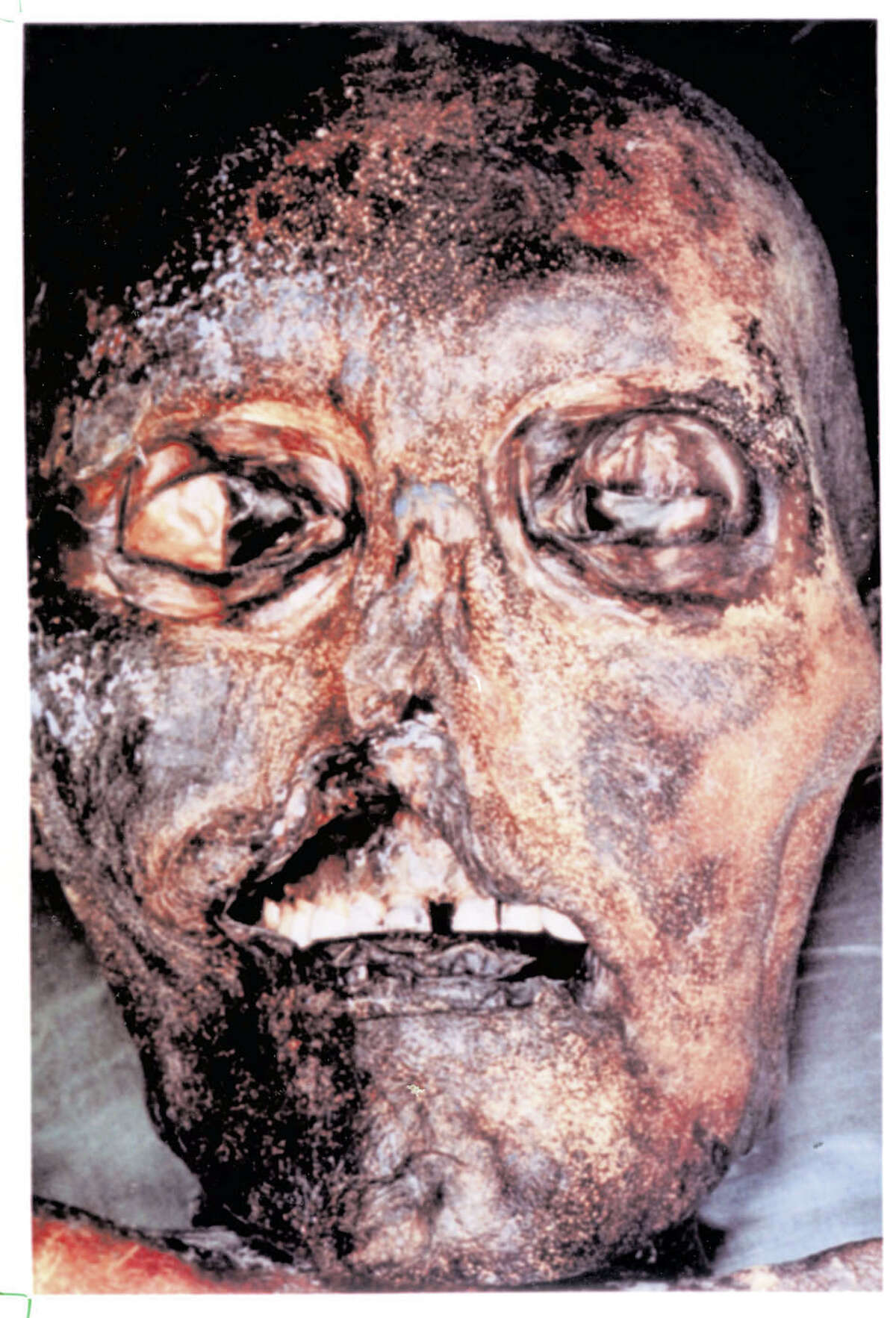 Otzi the man The mummy found in the Alpine ice in 1991 and christened Otzi was about 5 ft. 5 in. tall. He weighed about 100 lbs. and lived about 5,300 years ago. He was probably around 45 years old when he died. His mummification was natural, not man-made like those of the Egyptians.