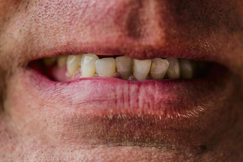 A wife is trying to get her husband to take care of his teeth. Photo: Eric Raptosh Photography, Getty Images/Blend Images