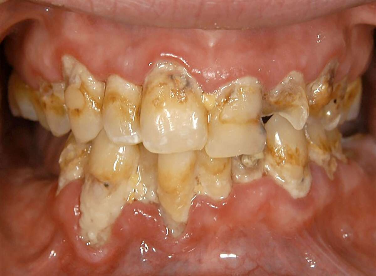An example of what methamphetamine use does to teeth.
