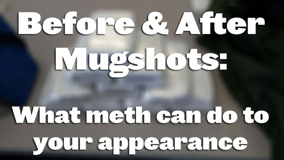 What methamphetamine can do to your face