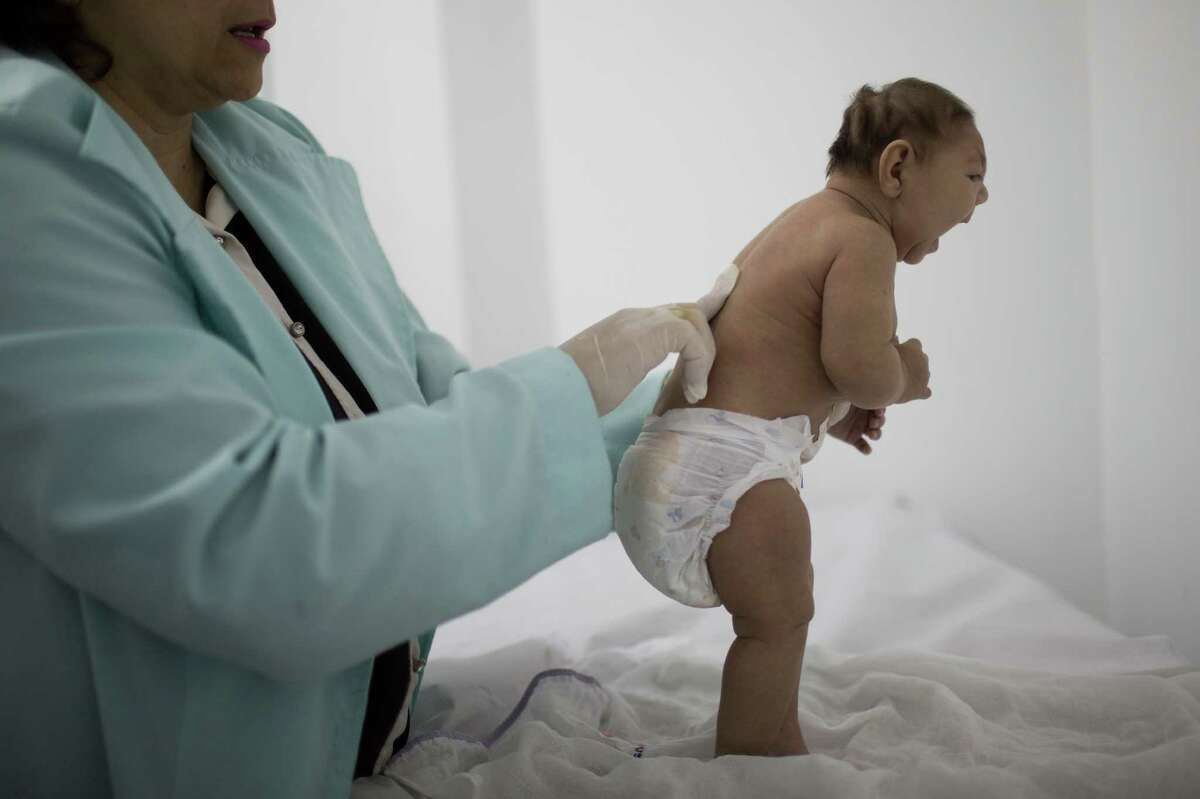 Lara, who is less then three months old and was born with microcephaly, is examined by a neurologist at the Pedro I hospital in Campina Grande, Paraiba state, Brazil, Friday, Feb. 12, 2016. Many researchers believe the Zika virus can cause microcephaly in the fetuses of pregnant women.