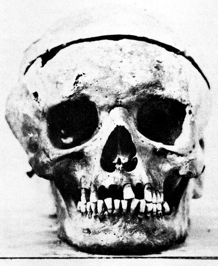 Ira F. Brilliant Center for Beethoven StudiesSan JoseDid you know that San Jose State has the largest collection of Beethoven materials in the Western hemisphere? The Beethoven Center has scores, historical keyboards and even a lock of Beethoven's hair. The photo above is a reconstruction of Beethoven's skull that the center commissioned.  Photo: Z, AP