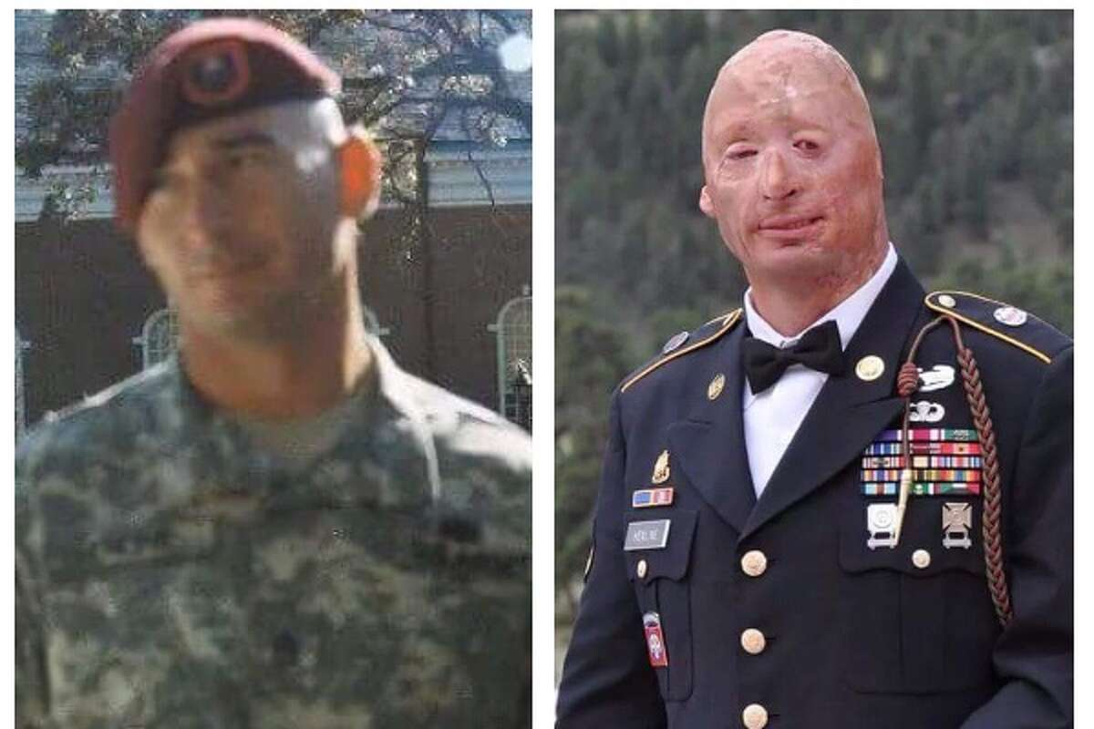 A local Wounded Warrior whose story of survival following a road side bomb explosion in Iraq is