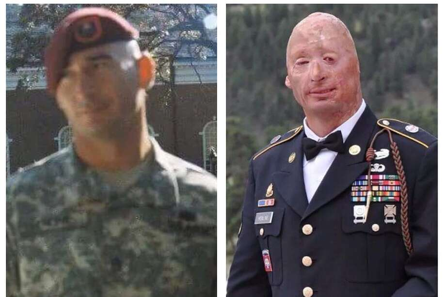 """A local Wounded Warrior whose story of survival following a road side bomb explosion in Iraq is """"unexplainable,"""" is now working to create a better future for not only himself, but his fellow veterans as well, through an old-fashioned burger. Photo: Provided By Bobby Henline"""