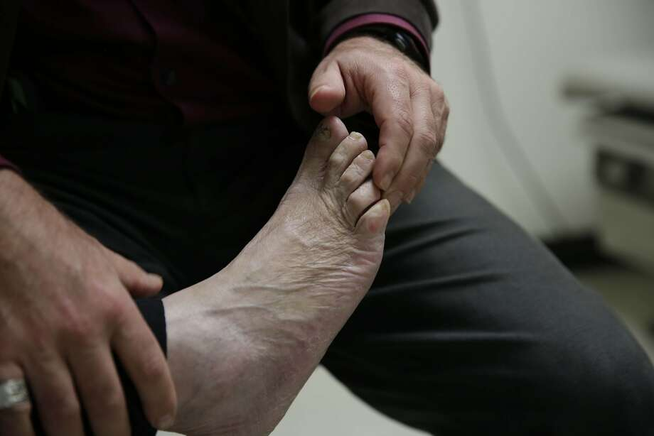 Dr. Dean Schillinger checks the swelling on the feet of Ruth Orozco of San Francisco, who has diabetes, during a medical appointment at San Francisco General Hospital on Monday, February 22, 2016 in San Francisco, California. Photo: Lea Suzuki, The Chronicle