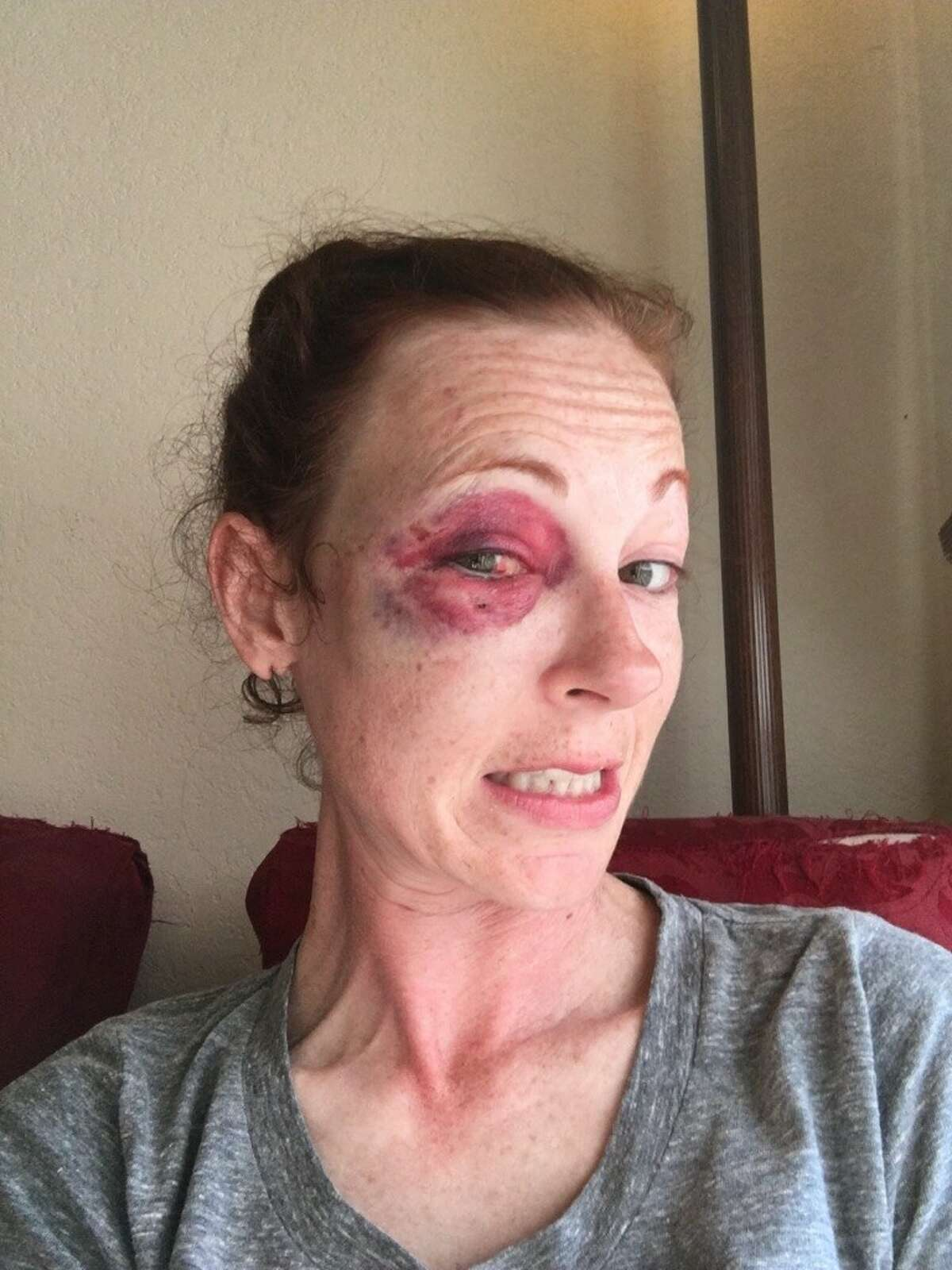 Tatum Weeks says she was violently attacked inside her apartment on Feb. 18, 2016.Read more: Violent break-in has residents of quiet neighborhood near Alamo Heights on edge