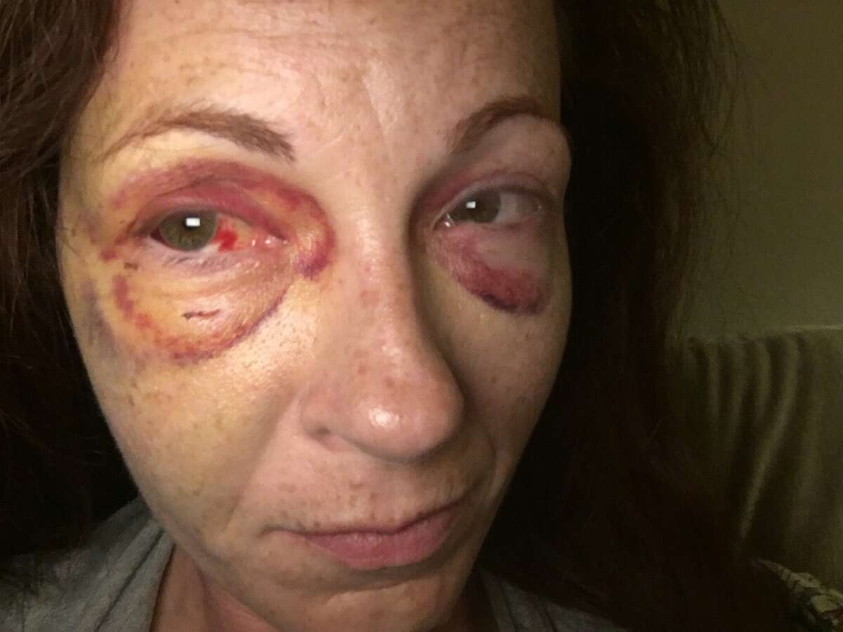 Tatum weeks says she was violently attacked inside her apartment on Feb. 18.