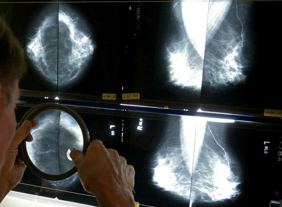 A radiologist uses a magnifying glass to check mammograms for breast cancer in Los Angeles.  Photo: Damian Dovarganes, STF / AP